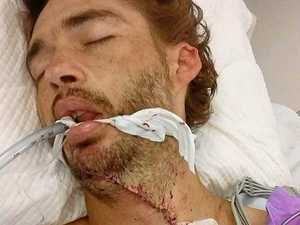 Slaughterhouse nightmare: father's throat slashed with saw