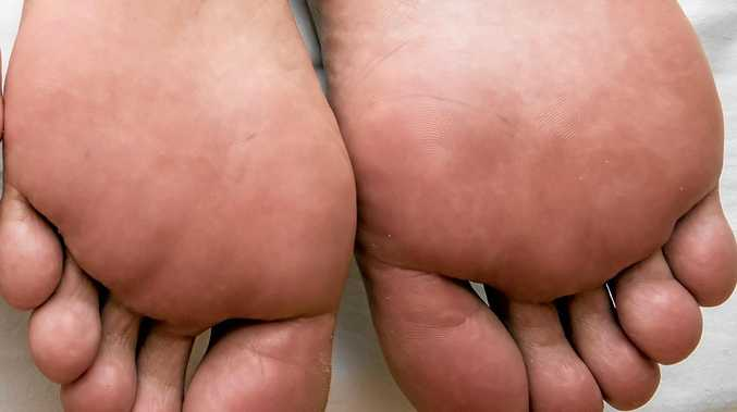 Feet can tell a story about your health.