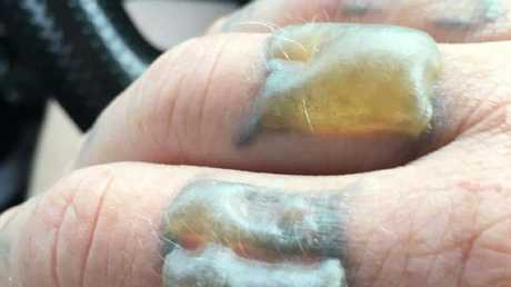 These blisters started to form on Mr Maltby's hand 10 minutes after his final laser tattoo session.