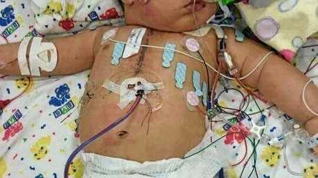 Kai Mook was diagnosed with Truncus arteriosus at 22 weeks prenatal.