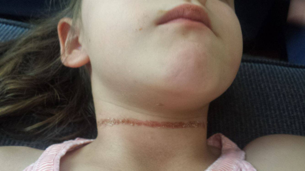 A 5-year-old girl was badly hurt when the cord of her school hat wrapped around her neck in a playground accident