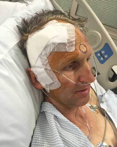 BIG HEART: Crows Nest man Warren Fowler (pictured after brain surgery) has been overwhelmed with the support for him by the community as he battled cancer.