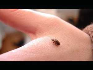 Confirmed cases of scabies in Cannonvale