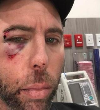 Grant Hackett posts an image on social media showing himself with a black eye after a public falling out with his family.