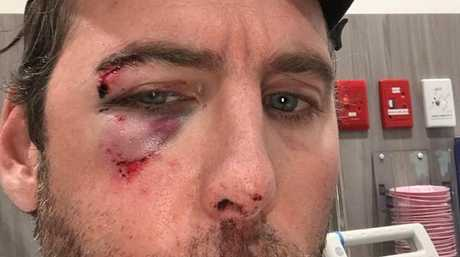 Grant Hackett posted an image of himself with a blackened eye after visiting his family.