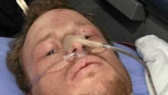 INJURED: Clermont man, Rhys Wood, 24 was injured in a snow boarding accident in Canada. A Go Fund Me page has been started to raise money to bring him back to Australia.