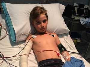 Boy, 10, given 12 vials of antivenene after funnel-web bite