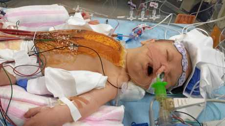 TOUGH KID: Noah Lammi during the initial stages of his first open heart surgery. Photo: contributed