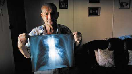 Percy Verrall was diagnosed with black lung disease in 2015. He was the first Australian diagnosed with the disease in 30 years. The latest case — a central Queensland miner — wishes to remain anonymous.