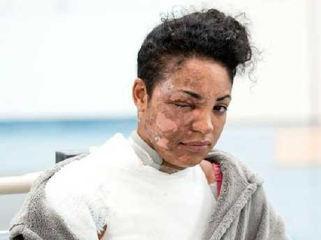 UK woman Tysha Stapleton says the NutriBullet exploded in her face.