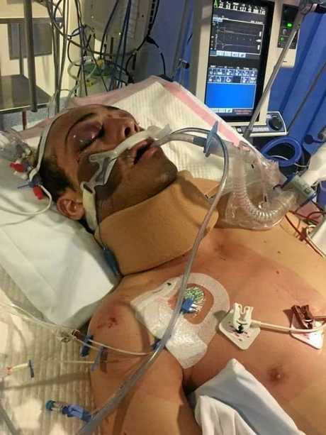 Joshy fights for his life in hospital after the horror crash that claimed the life of his mate.
