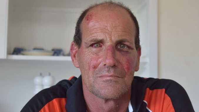 LOW ACT: Scarness man Colin Armitt says he was king hit in his own yard for not giving a smoke to his attacker.