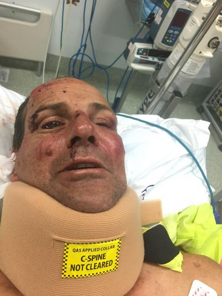 HEAD WOUNDS: Colin Armitt in Hervey Bay Hospital after he was 'attacked in his own yard'.