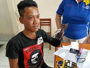 1000 prosthetic hands fitted