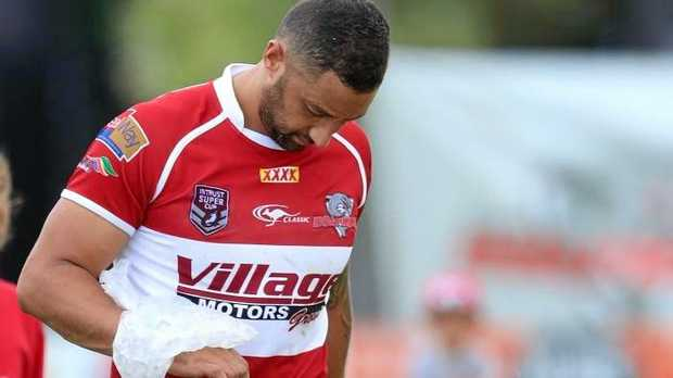 Benji Marshall ices his wrist after Redcliffe's win over the Ipswich Jets. Picture: Darren England