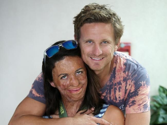 Turia Pitt and her partner Michael Hoskin the day after competing in the Ironman World Championships in Hawaii. Picture: Michael Klein