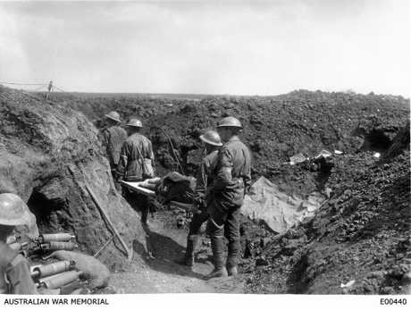 Stretcher bearers of the 8th Battalion carry wounded soldiers back along the trenches during the fighting at Bullecourt.