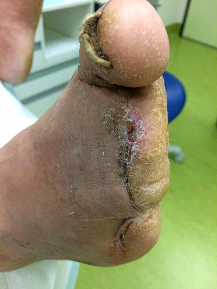 Peter's foot.
