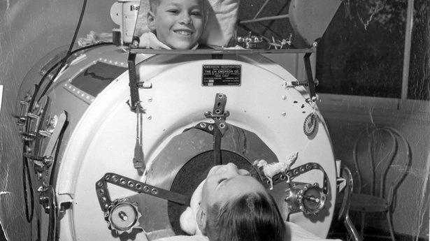 DEBILITATING DISEASE: A young polio victim in an iron lung.