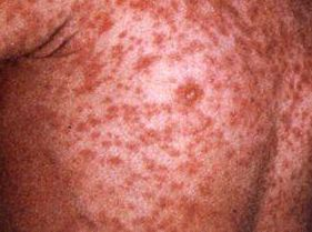 A person infected with the deadly measles virus travelled from Sydney to Rockhampton before they were diagnosed.