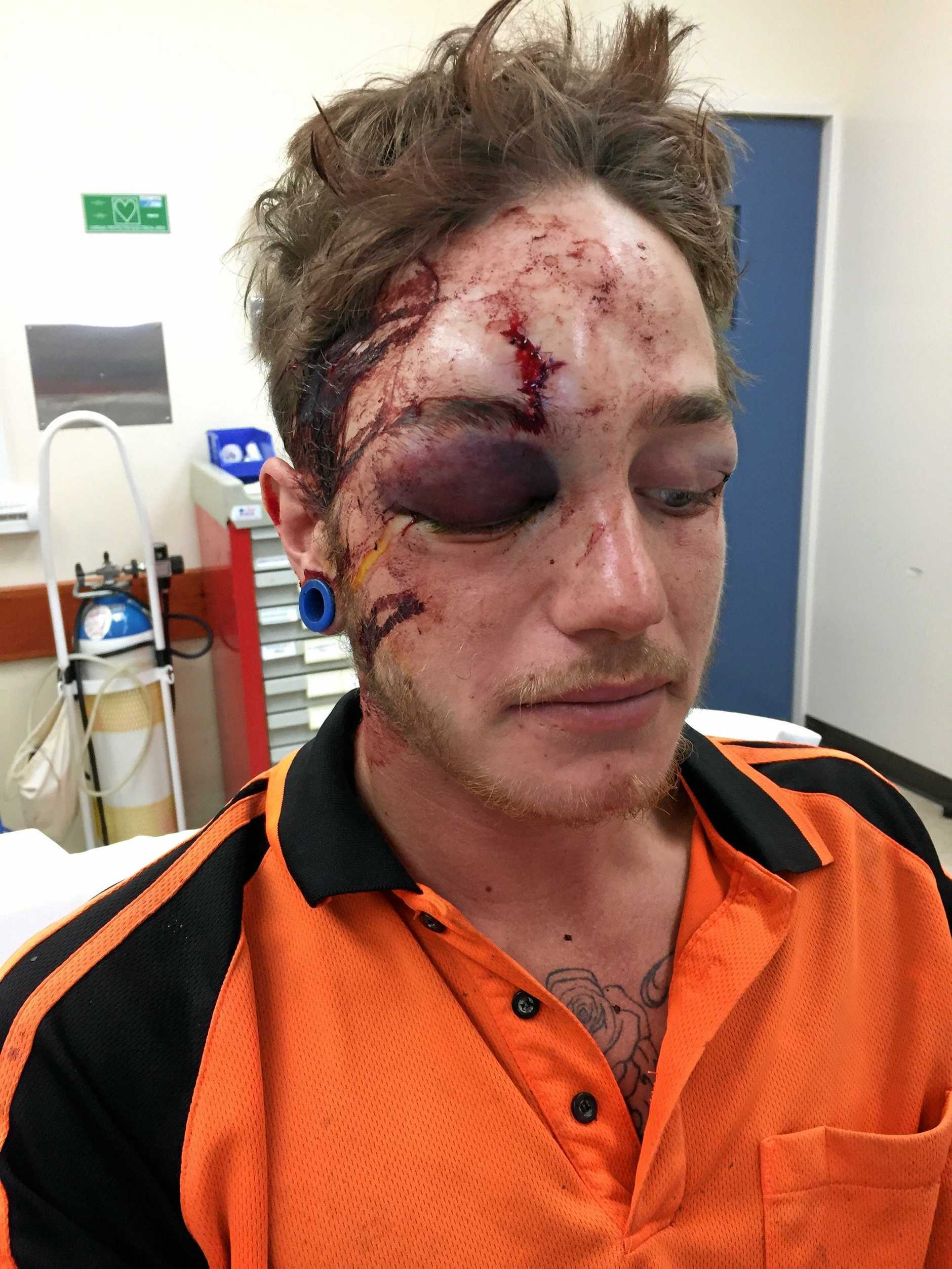 Ashley Francis looking worse for wear after a workplace accident left him with a fractured skull and severe concussion.