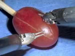 Amazing micro-surgery robot