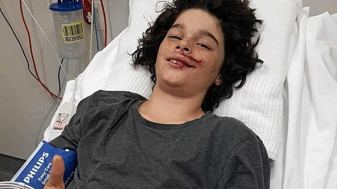 LUCKY BOY: Ryley Barnes was fortunate not to be seriously injured after he was hit by a car while riding his BMX bike on Bertrand Ave in Kensington Grove, but suffered a concussion and bruising to his liver and kidney.
