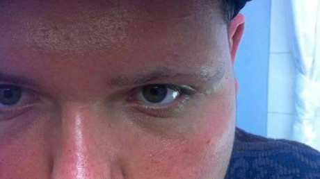 T-DUB FAN CLUB: Cody Dueker the day he got his idol's name tattooed on his bottom lip.