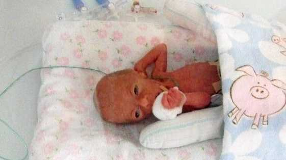 Chloe Scott was born at 30 weeks gestation, weighing only 420 grams.