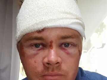Mitch Jarrett after his dirt bike crash.