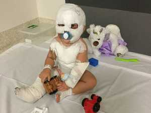 Scarred for life: toddler in horror burns accident