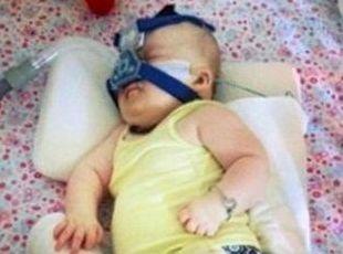 Two-year-old Molly Black has a rare chromosomal disorder