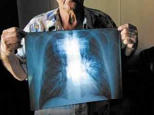 Coal miner struck by lung disease