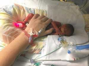 This baby was born too early and needs your help
