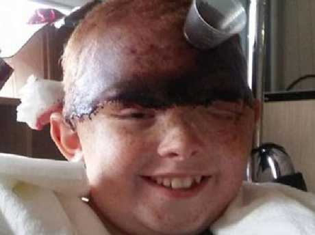 The accident nearly removed her entire scalp and caused damage to both of her eyes.