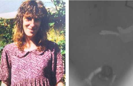 (L)Miriam Merten in happier times. Picture: SuppliedSource:Supplied (R) Ms Merten fell and stuck her head more than 20 times during the ordeal.Source:Supplied