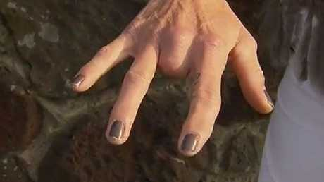 Scott lost a finger due to one of Murphy's attacks. Picture: 7 News