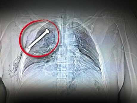 The x-ray image of a person injured during the Brussels terror attacks shows a big nail or screw in the chest of the patient treated at the Military Hospital in Neder-over-Heembeek in northern Brussels, 22 March 2016.