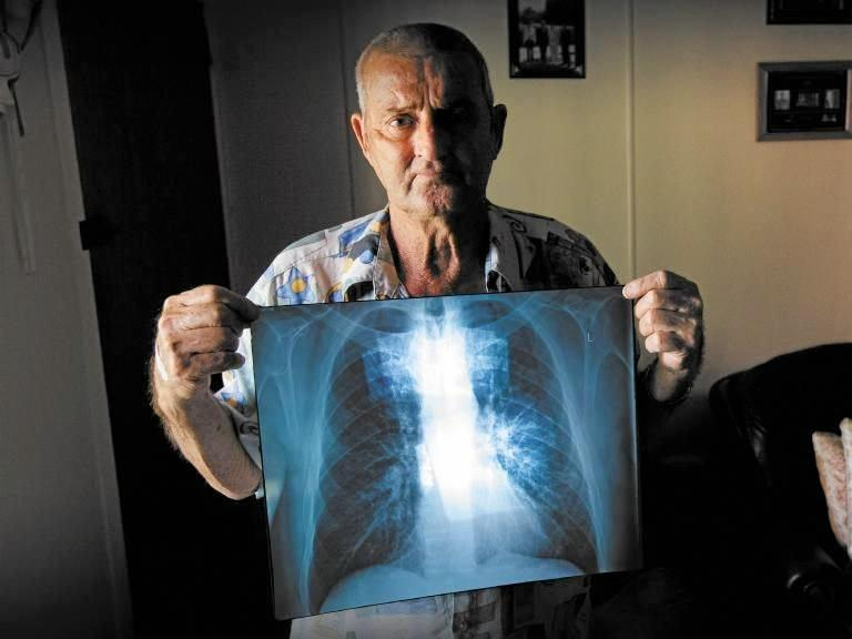 Ipswich man Percy Verrall was diagnosed with black lung disease in 2015.