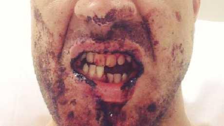 Dominic Beinke's jaw.