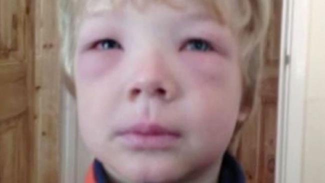Some children are being targeted for their allergies by bullies. Picture: 7 News