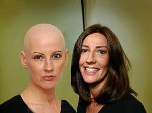 How a beautiful Coast woman went bald at 22