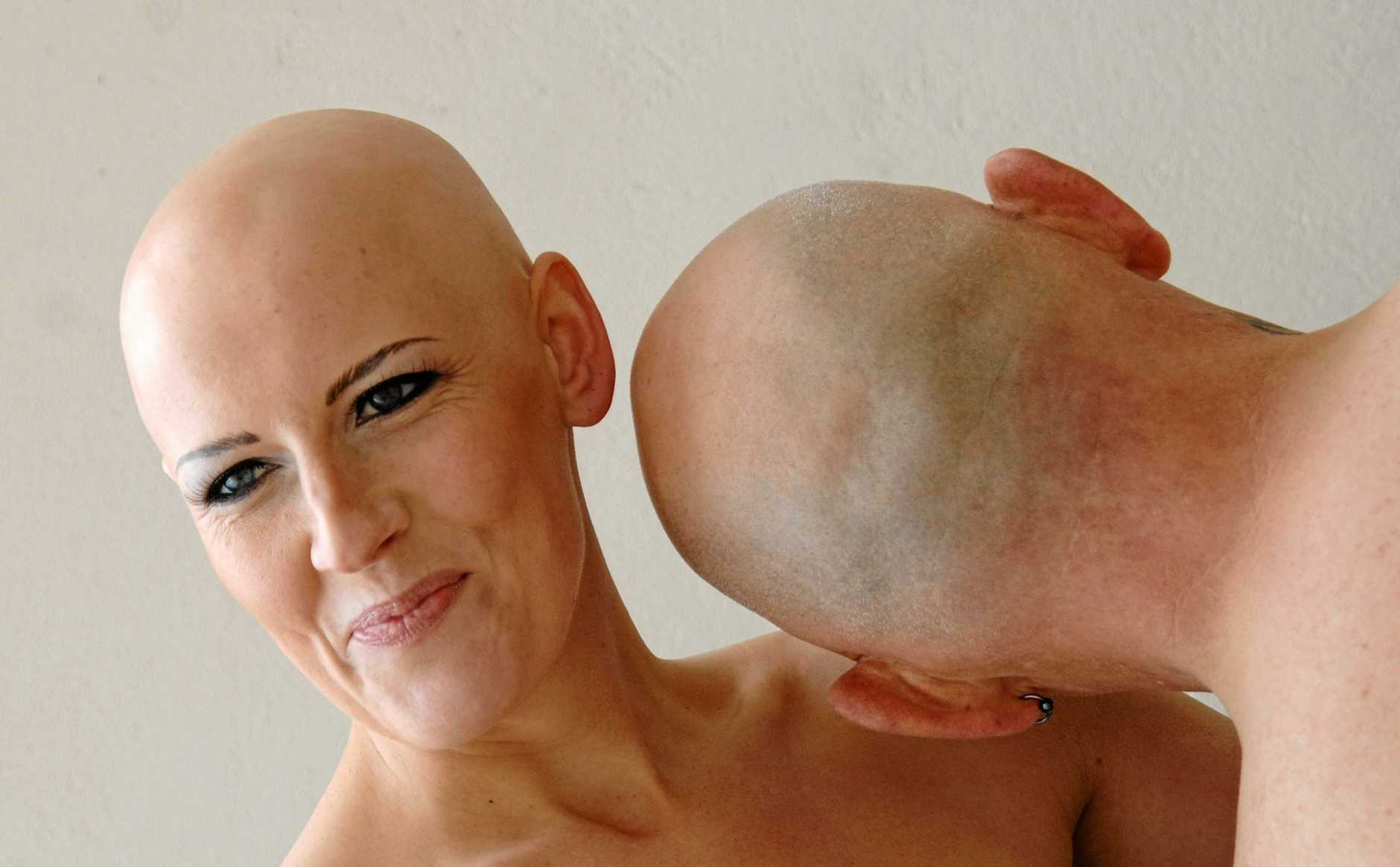Jayne Waddell with a friend from the United Kingdom poses for a alopecia awareness campaign.
