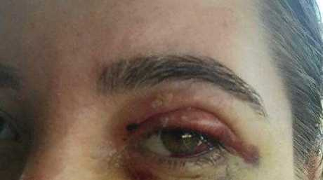26-year-old Brisbane woman Tamika Turner was left with a broken eye socket after being attacked by a gang of Coolum youths.