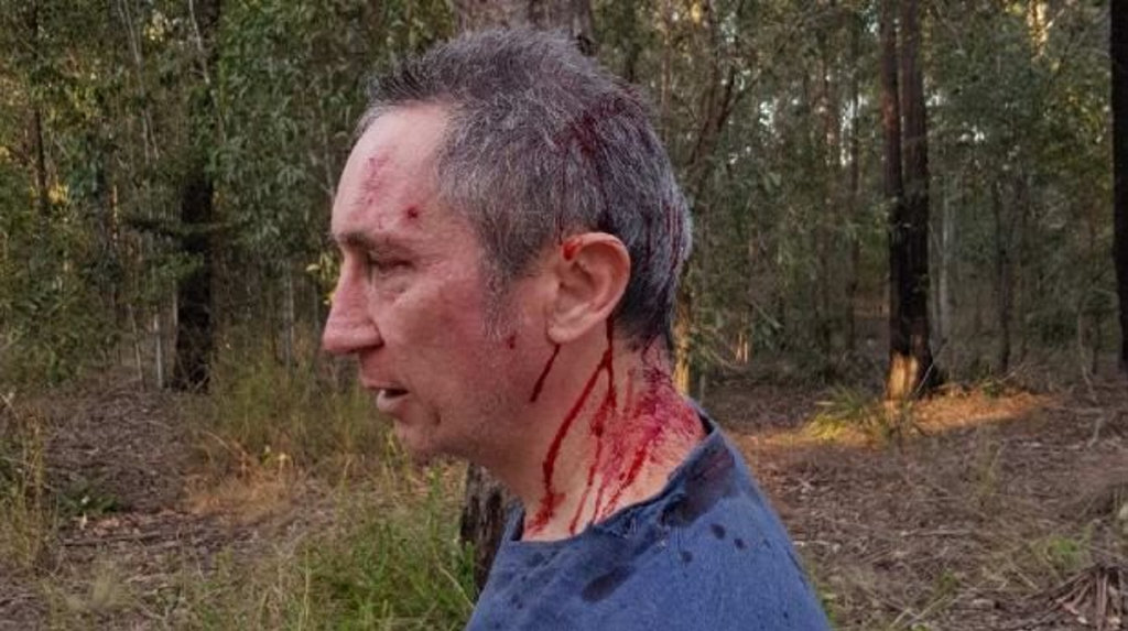 Jim Dodrill shared these images of himself after the attack in bush land at Collingwood Park on Sunday afternoon where his elderly father was also attacked.
