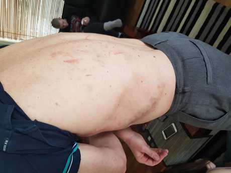 Jim Dodrill's injuries on Tuesday after the attack in bush land on Sunday.