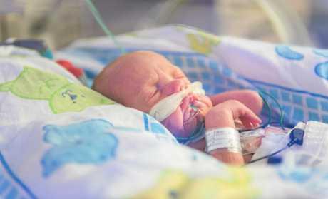 Baby Parker Edwards was born via emergency caesarean at just 27 weeks gestation.