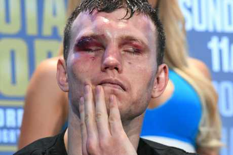 Jeff Horn shows the scars of battle at a press conference after his win against Manny Pacquiao.