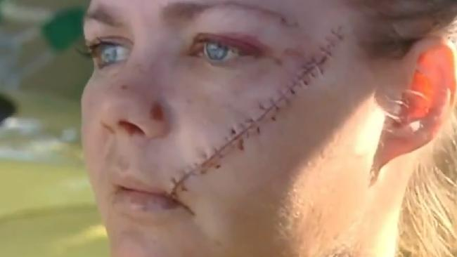 Ingrid Brown suffers horrific scars after she was attacked with a machete in her own backyard. Picture: Nine News