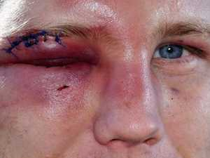 Brutality in boxing and footy is one for the brainless